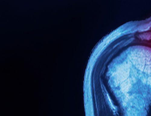 Ρήξη Υπερακανθίου: Συμπτώματα, Αίτια και Αντιμετώπιση